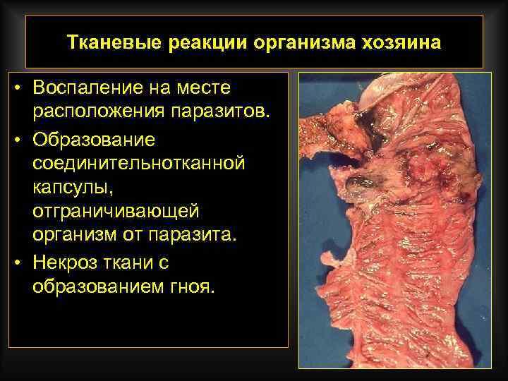 Тканевые реакции организма хозяина • Воспаление на месте расположения паразитов. • Образование соединительнотканной капсулы,