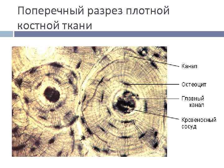 Поперечный разрез плотной костной ткани