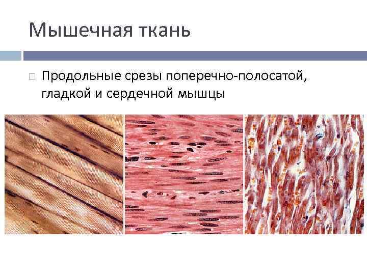 Мышечная ткань Продольные срезы поперечно-полосатой, гладкой и сердечной мышцы
