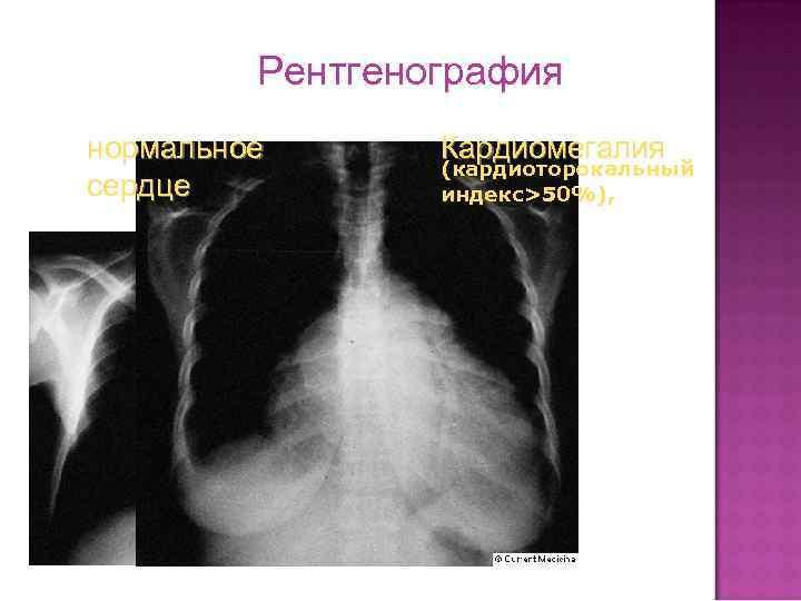 Рентгенография нормальное сердце Кардиомегалия (кардиоторокальный индекс>50%),