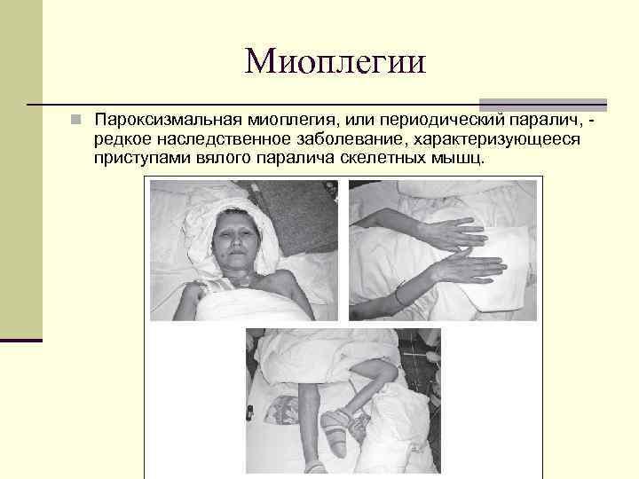 М.А МАГАМЕДОВ МИОПЛЕГИЯ СКАЧАТЬ БЕСПЛАТНО