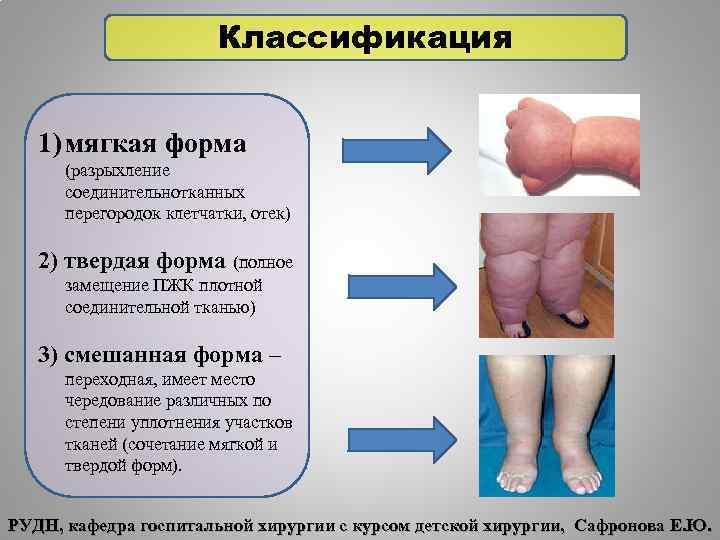 Классификация 1) мягкая форма (разрыхление соединительнотканных перегородок клетчатки, отек) 2) твердая форма (полное замещение