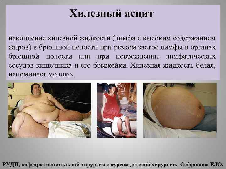 Хилезный асцит накопление хилезной жидкости (лимфа с высоким содержанием жиров) в брюшной полости при
