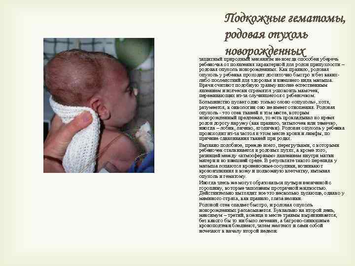 Подкожные гематомы, родовая опухоль новорожденных защитный природный механизм не всегда способен уберечь ребеночка от