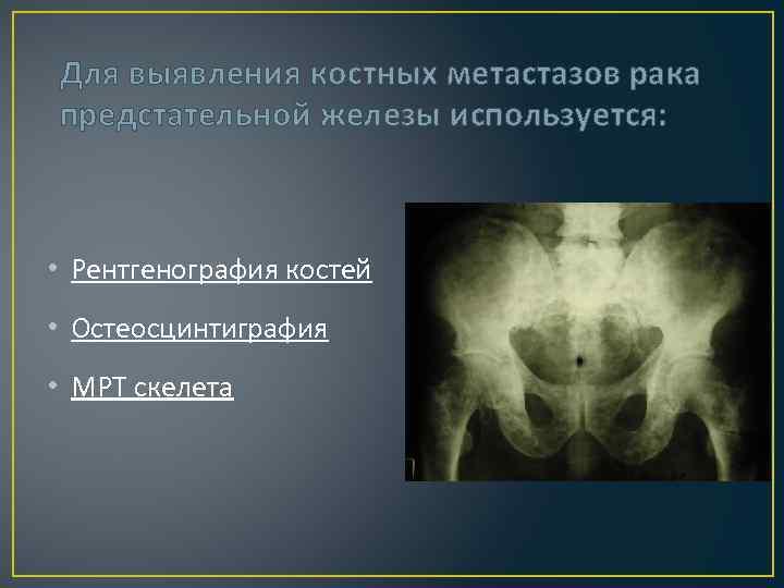 Для выявления костных метастазов рака предстательной железы используется: • Рентгенография костей • Остеосцинтиграфия •
