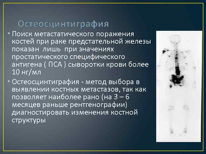 Остеосцинтиграфия • Поиск метастатического поражения костей при раке предстательной железы показан лишь при значениях