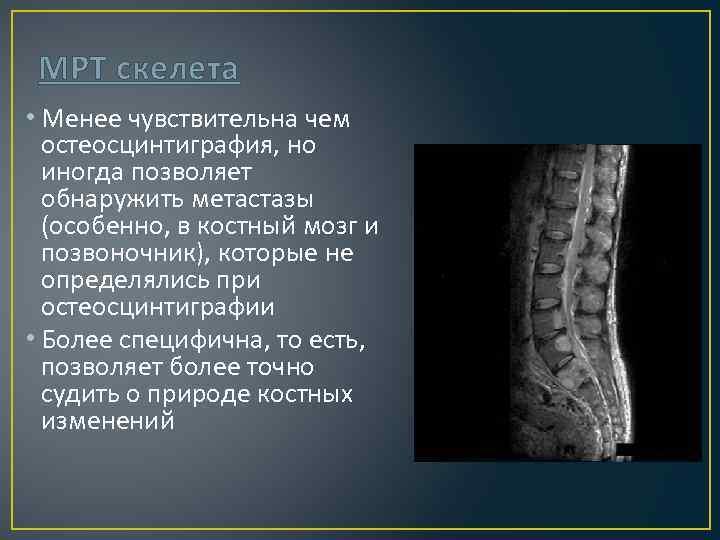 МРТ скелета • Менее чувствительна чем остеосцинтиграфия, но иногда позволяет обнаружить метастазы (особенно, в