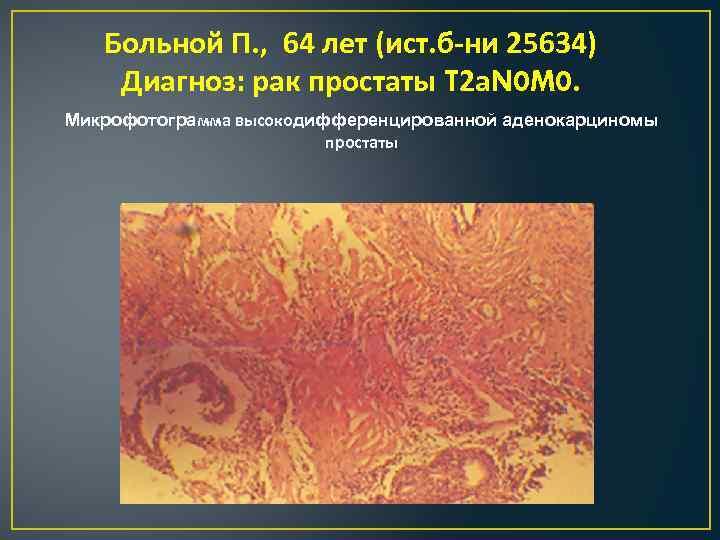 Больной П. , 64 лет (ист. б-ни 25634) Диагноз: рак простаты T 2 а.