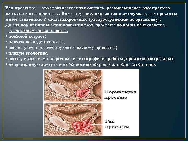 Рак простаты — это злокачественная опухоль, развивающаяся, как правило, из ткани желез простаты. Как