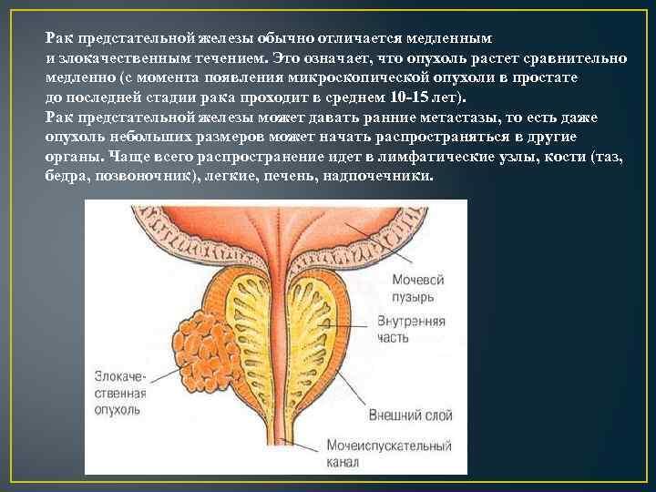 Рак предстательной железы обычно отличается медленным и злокачественным течением. Это означает, что опухоль растет