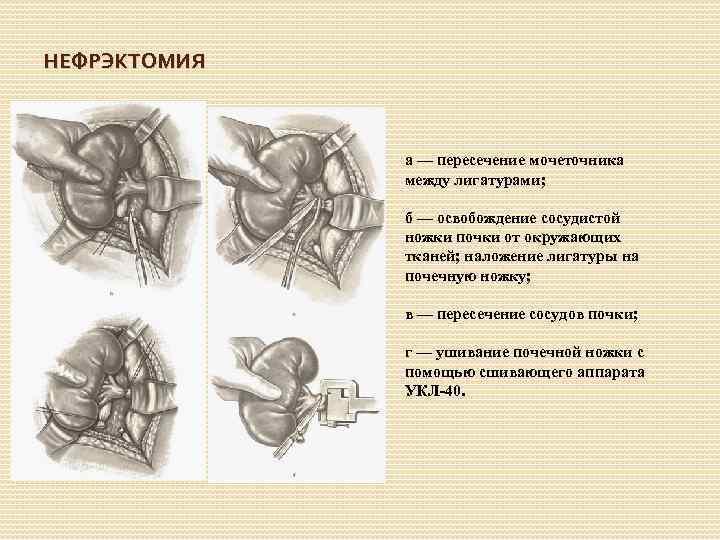 НЕФРЭКТОМИЯ а — пересечение мочеточника между лигатурами; б — освобождение сосудистой ножки почки от