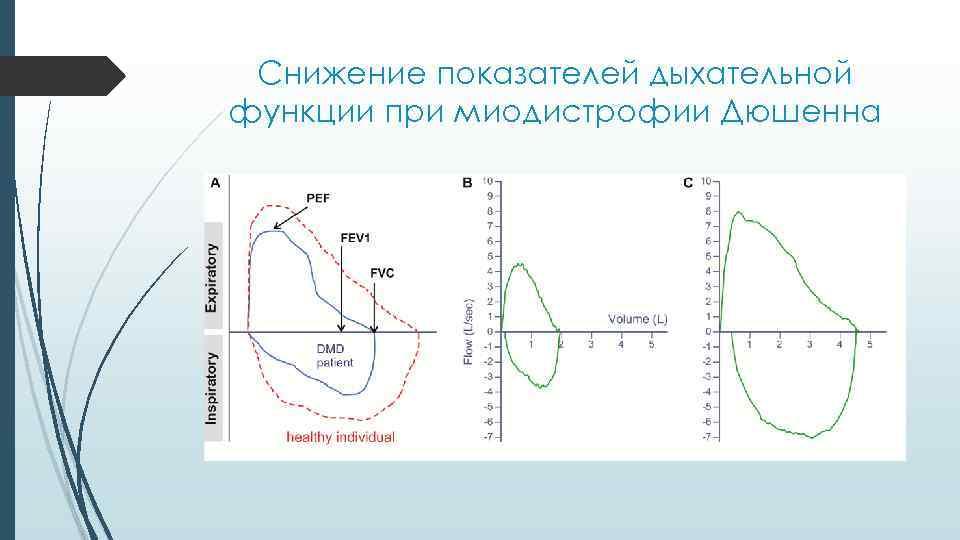 Снижение показателей дыхательной функции при миодистрофии Дюшенна
