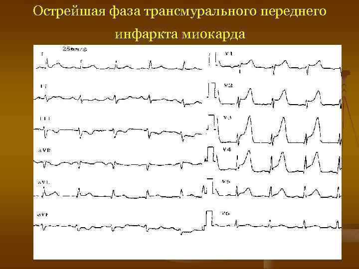 Острейшая фаза трансмурального переднего инфаркта миокарда