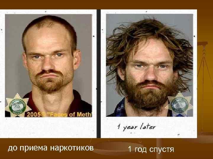 до приема наркотиков 1 год спустя