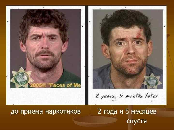 до приема наркотиков 2 года и 5 месяцев спустя
