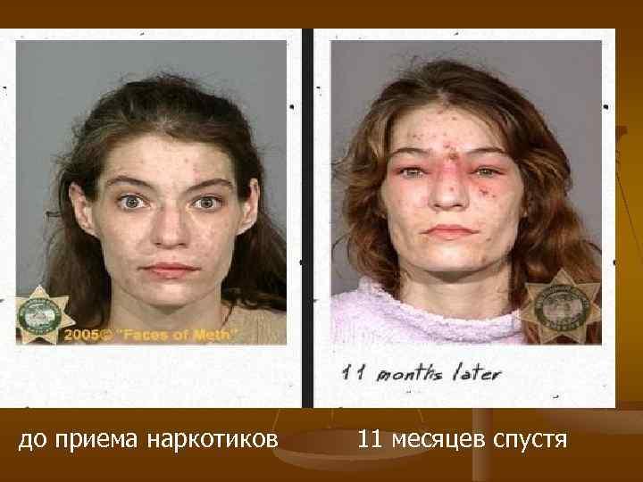 до приема наркотиков 11 месяцев спустя