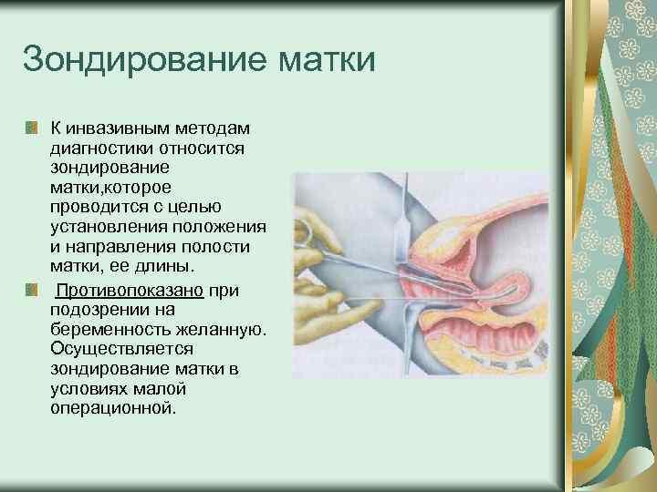 Зондирование матки К инвазивным методам диагностики относится зондирование матки, которое проводится с целью установления