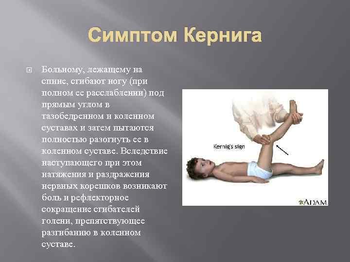 Симптом Кернига Больному, лежащему на спине, сгибают ногу (при полном ее расслаблении) под прямым