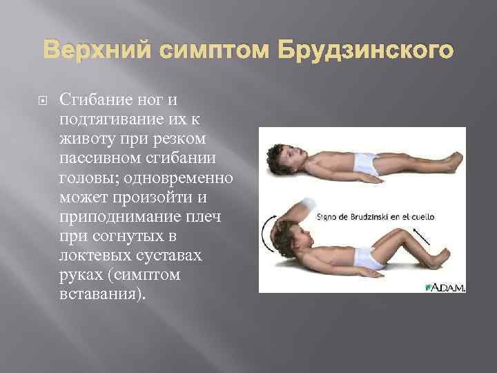 Верхний симптом Брудзинского Сгибание ног и подтягивание их к животу при резком пассивном сгибании