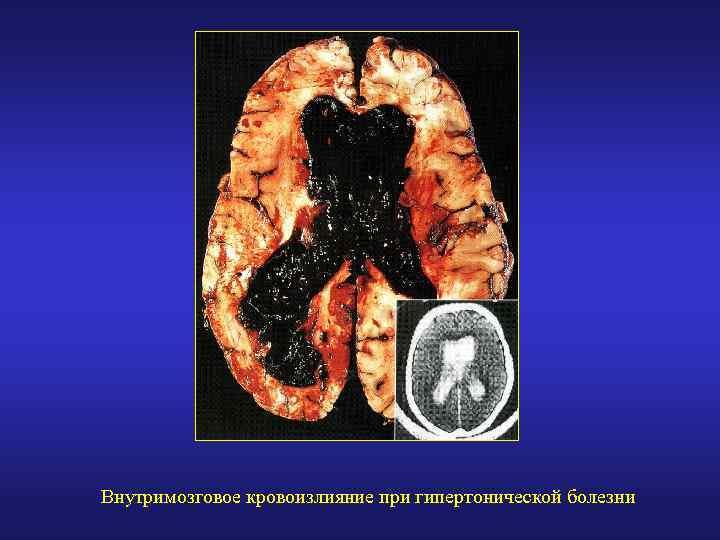 Изолированная систолическая гипертония у пожилых и молодых ...