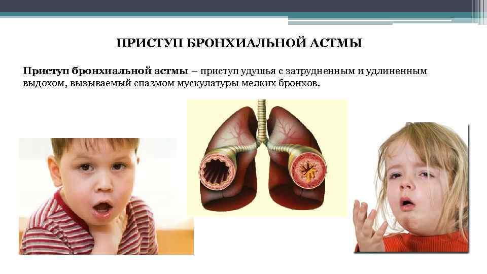 Как снять приступы астмы в домашних условиях 689