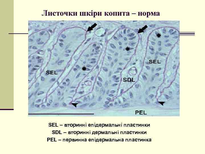 Листочки шкіри копита – норма SEL – вторинні епідермальні пластинки SDL – вторинні дермальні