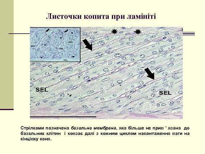 Листочки копита при ламініті Стрілками позначена базальна мембрана, яка більше не прив ' язана
