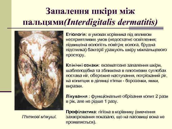 Запалення шкіри між пальцями(Interdigitalis dermatitis) Етіологія: в умовах корівника під впливом несприятливих умов (недостатнє