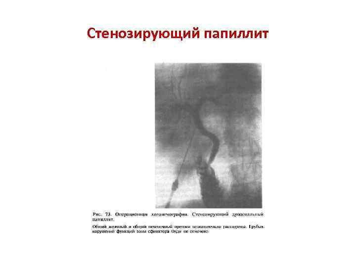 Стенозирующий папиллит