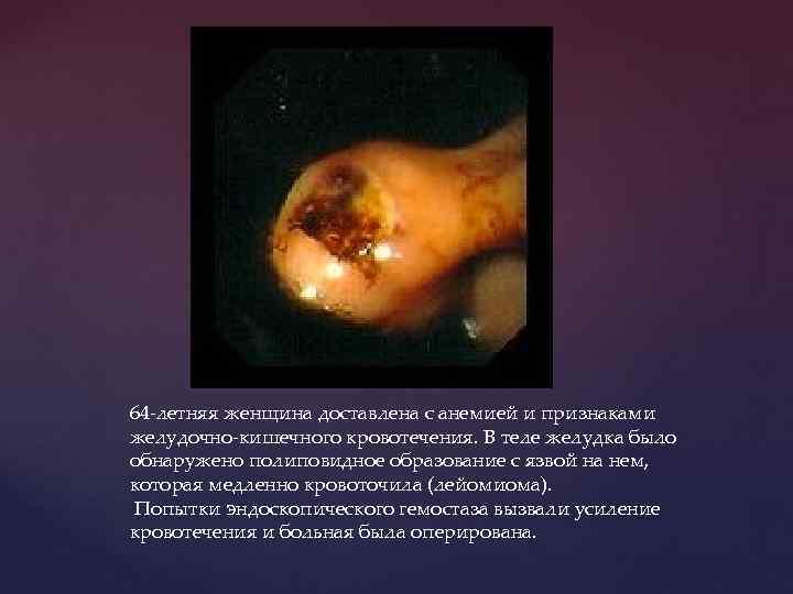 64 -летняя женщина доставлена с анемией и признаками желудочно-кишечного кровотечения. В теле желудка было