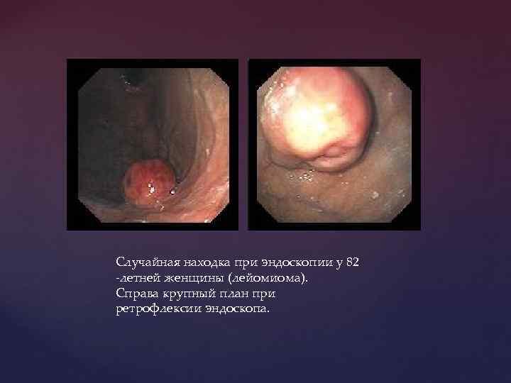 Случайная находка при эндоскопии у 82 -летней женщины (лейомиома). Справа крупный план при ретрофлексии
