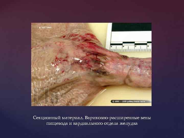 Секционный материал. Варикозно-расширенные вены пищевода и кардиального отдела желудка