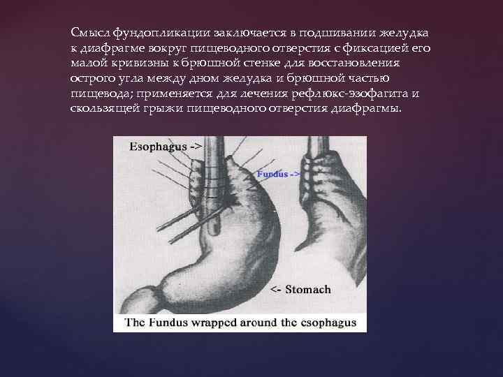 Смысл фундопликации заключается в подшивании желудка к диафрагме вокруг пищеводного отверстия с фиксацией его