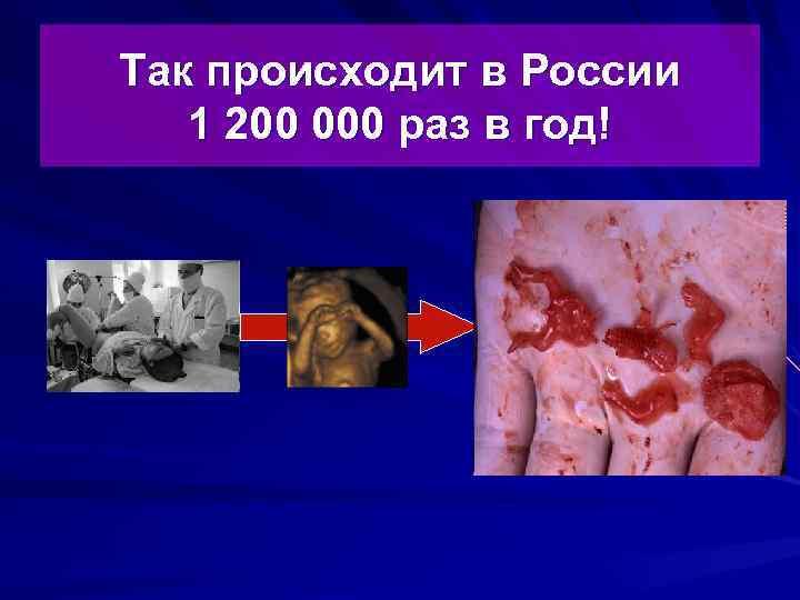 Так происходит в России 1 200 000 раз в год!