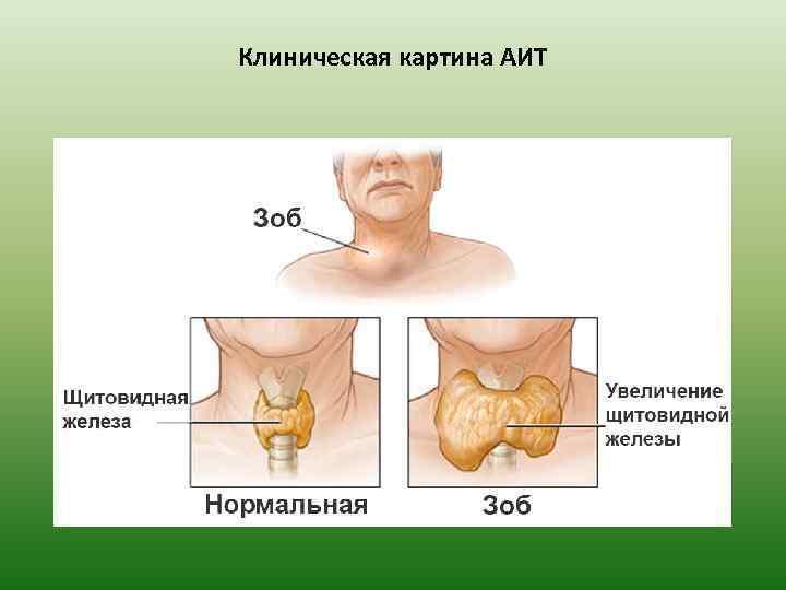 Клиническая картина АИТ