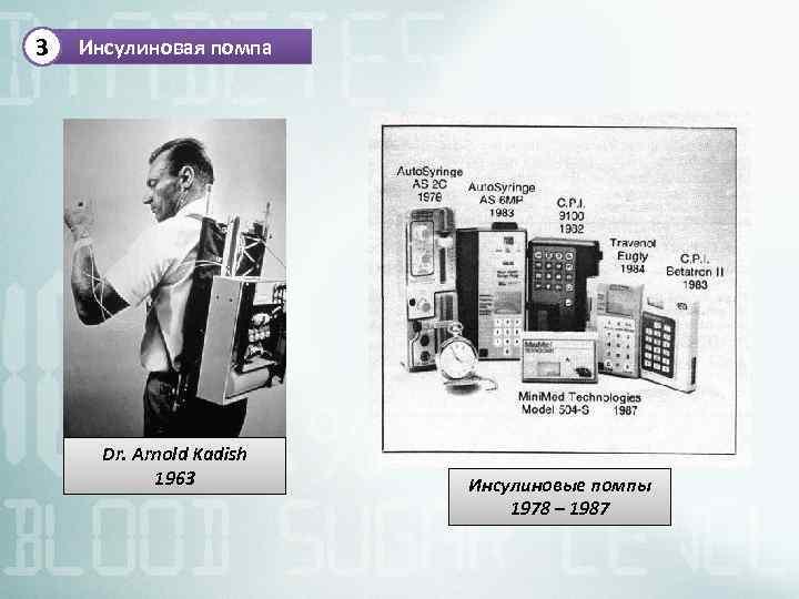 3 Инсулиновая помпа Dr. Arnold Kadish 1963 Инсулиновые помпы 1978 – 1987
