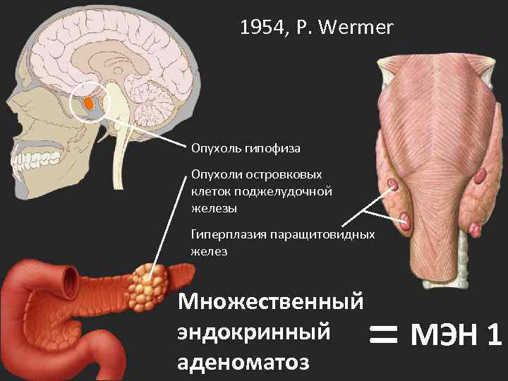 1954, P. Wermer Опухоль гипофиза Опухоли островковых клеток поджелудочной железы Гиперплазия паращитовидных желез Множественный