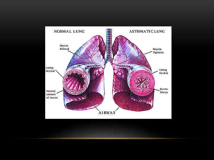 a description of the different respiratory problems bronchitis emphysema asthma and poliomyelitis Copd refers to chronic bronchitis, emphysema, and combined presentations of these two diseases it is a leading cause of morbidity and mortality in the united states and world-wide asthma is an inflammatory airways disease causing episodic, reversible airways obstruction.