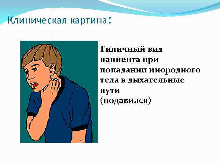 Клиническая картина: Типичный вид пациента при попадании инородного тела в дыхательные пути (подавился)
