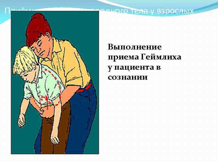 Приёмы удаления инородного тела у взрослых : Выполнение приема Геймлиха у пациента в сознании