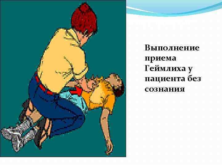 риёмы удаления инородного тела у взрослых : Выполнение приема Геймлиха у пациента без сознания