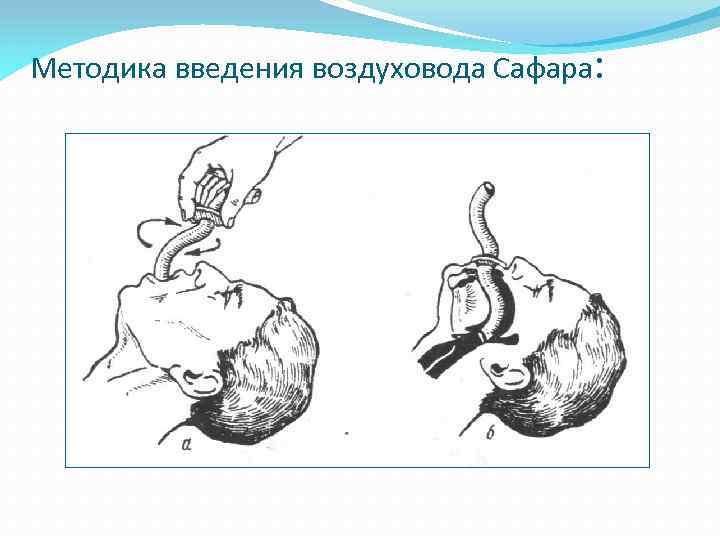 Методика введения воздуховода Сафара: