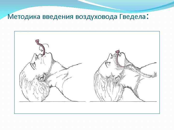 Методика введения воздуховода Гведела: