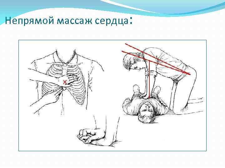Непрямой массаж сердца: