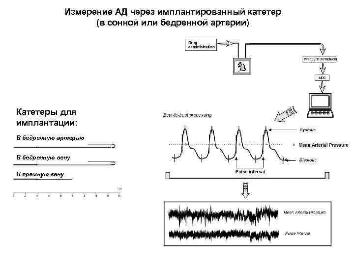Измерение АД через имплантированный катетер (в сонной или бедренной артерии) Катетеры для имплантации: В