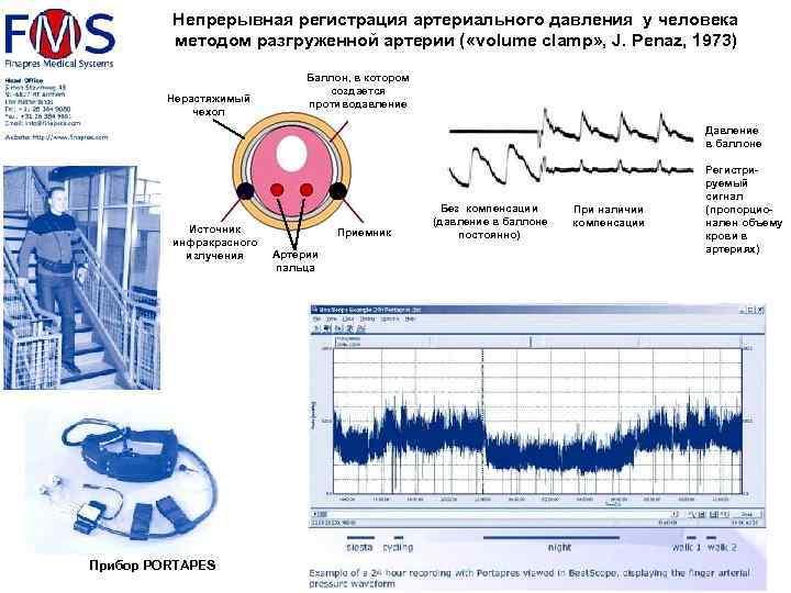 Непрерывная регистрация артериального давления у человека методом разгруженной артерии ( «volume clamp» , J.