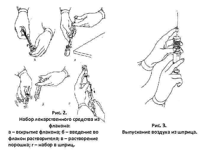 Рис. 2. Набор лекарственного средства из флакона: а – вскрытие флакона; б – введение
