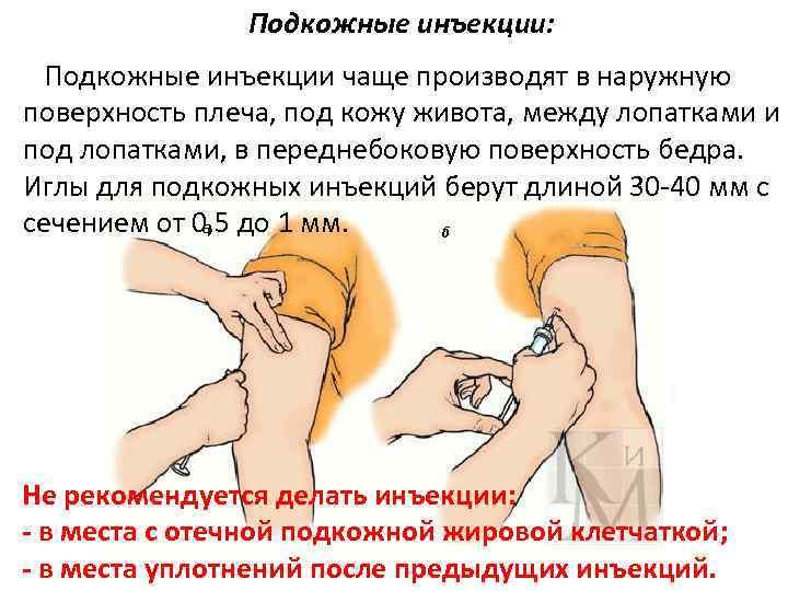 Подкожные инъекции: Подкожные инъекции чаще производят в наружную поверхность плеча, под кожу живота, между
