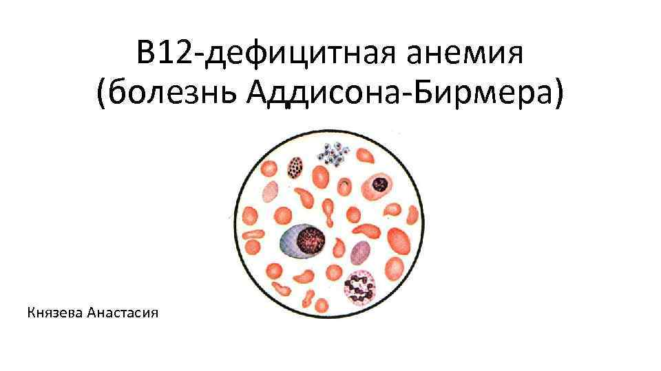 В 12 дефицитная анемия (болезнь Аддисона Бирмера) Князева Анастасия
