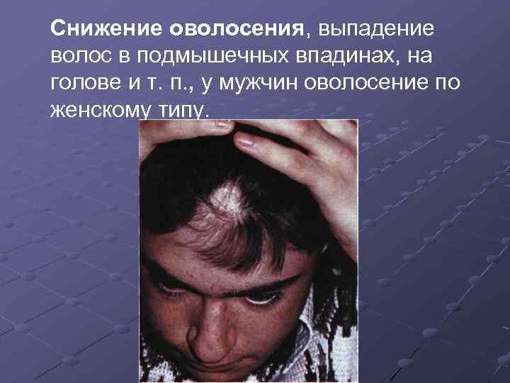 Снижение оволосения, выпадение волос в подмышечных впадинах, на голове и т. п. , у
